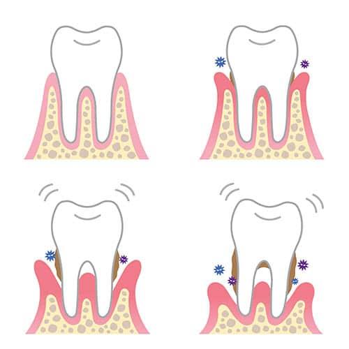 Parodontalerkrankungen - Symptome und Krankheitsverlauf