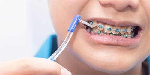 Verletzungen durch Zahnspangen - Prophylaxe