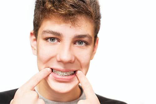 Verletzungen durch Zahnspangen